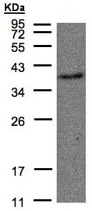 Western blot - Anti-Thromboxane A2 receptor/TBXA2R antibody (ab137607)