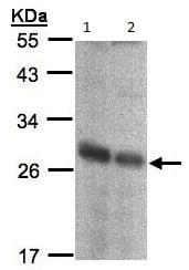 Western blot - Anti-NQO2 antibody (ab137612)