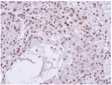Immunohistochemistry (Formalin/PFA-fixed paraffin-embedded sections) - Anti-Transaldolase 1 antibody (ab137629)