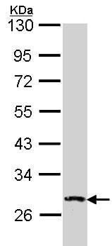Western blot - Anti-DUSP2/PAC1 antibody (ab137640)