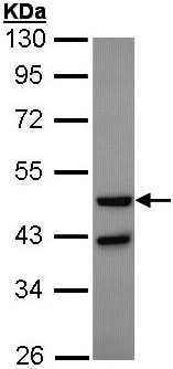 Western blot - Anti-Glucagon Receptor antibody - N-terminal (ab137649)