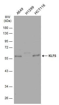 Western blot - Anti-KLF5 antibody (ab137676)
