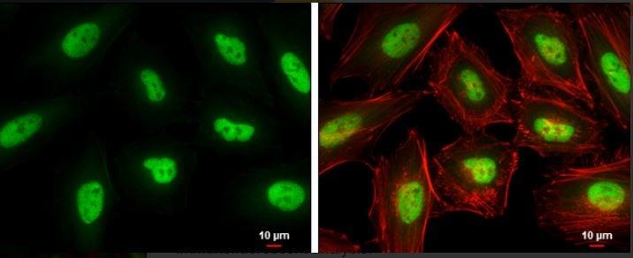 Immunocytochemistry/ Immunofluorescence - Anti-KLF5 antibody (ab137676)