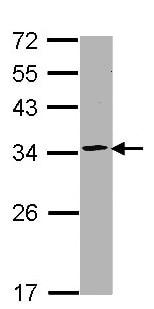 Western blot - Anti-Proteasome 20S C2/HC2 antibody (ab137681)
