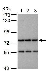 Western blot - Anti-NAGLU/NAG antibody (ab137685)