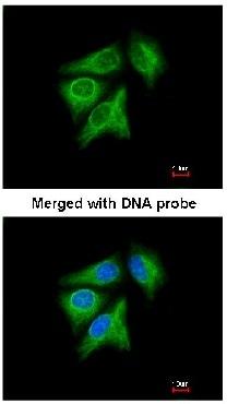 Immunocytochemistry/ Immunofluorescence - Anti-p40 antibody (ab137691)