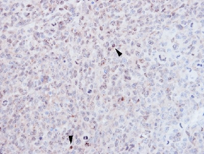 Immunohistochemistry (Formalin/PFA-fixed paraffin-embedded sections) - Anti-EZH1 antibody - N-terminal (ab137693)