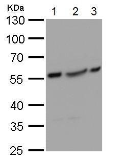 Western blot - Anti-Glucokinase antibody (ab137714)