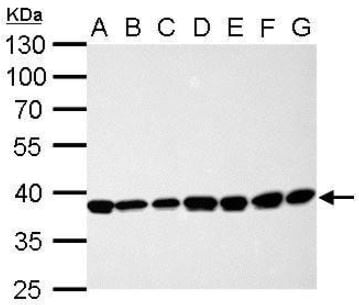 Western blot - Anti-Cdk7 antibody (ab137716)