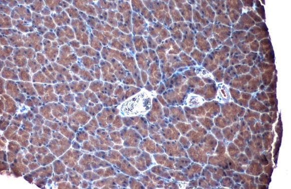 Immunohistochemistry (Formalin/PFA-fixed paraffin-embedded sections) - Anti-TLR3 antibody (ab137722)