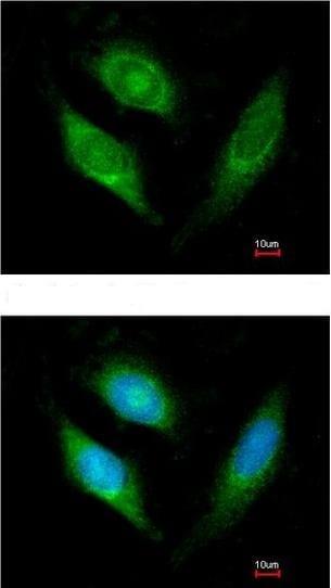 Immunocytochemistry/ Immunofluorescence - Anti-AIF antibody (ab137725)