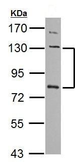 Western blot - Anti-P cadherin antibody (ab137729)
