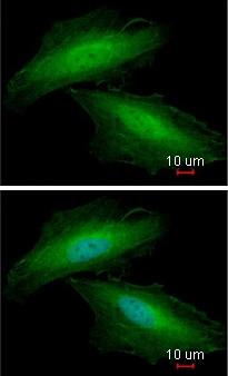 Immunocytochemistry/ Immunofluorescence - Anti-Annexin A1/ANXA1 antibody (ab137745)