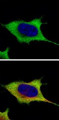 Immunocytochemistry/ Immunofluorescence - Anti-Hsp27 antibody (ab137748)