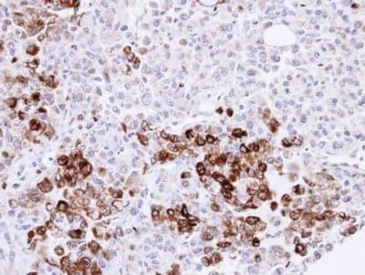 Immunohistochemistry (Formalin/PFA-fixed paraffin-embedded sections) - Anti-Heme Oxygenase 1 antibody (ab137749)