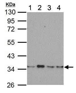 Western blot - Anti-Lactate Dehydrogenase B / LDH-B antibody (ab137759)