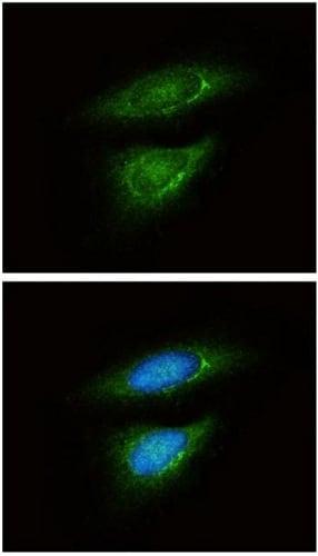 Immunocytochemistry/ Immunofluorescence - Anti-Lactate Dehydrogenase B / LDH-B antibody (ab137759)