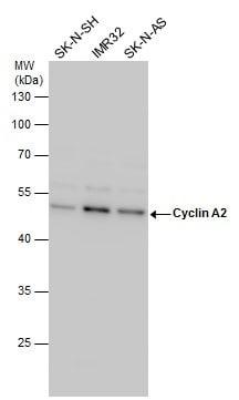 Western blot - Anti-Cyclin A2 antibody (ab137769)