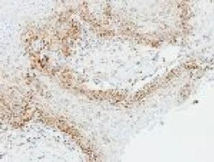 Immunohistochemistry (Formalin/PFA-fixed paraffin-embedded sections) - Anti-OGDH antibody - C-terminal (ab137773)