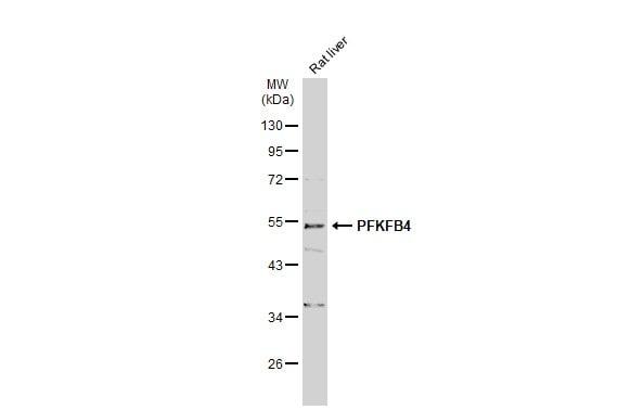 Western blot - Anti-PFKFB4 antibody (ab137785)