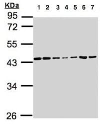Western blot - Anti-CSNK2A1 antibody (ab137788)