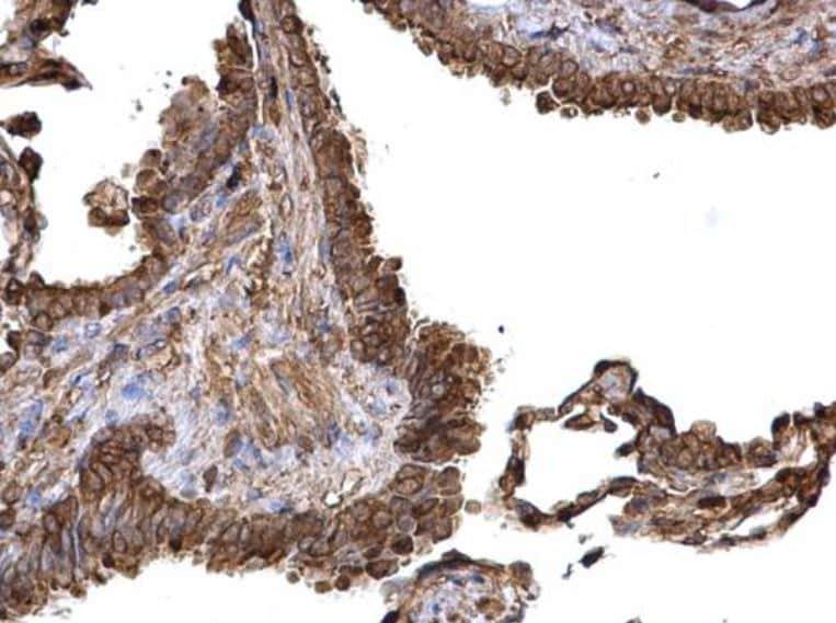 Immunohistochemistry (Formalin/PFA-fixed paraffin-embedded sections) - Anti-PKM antibody (ab137791)