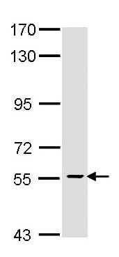 Western blot - Anti-HRPT2/Parafibromin antibody (ab137802)