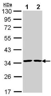 Western blot - Anti-Annexin V/ANXA5 antibody (ab137823)