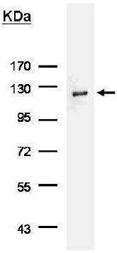 Immunoprecipitation - Anti-HA tag antibody (ab137838)