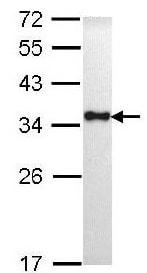 Western blot - Anti-HLA-DR antibody (ab137842)