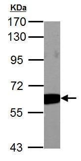 Western blot - Anti-PKM antibody (ab137852)