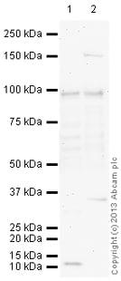 Western blot - Anti-DAB2 antibody (ab137866)