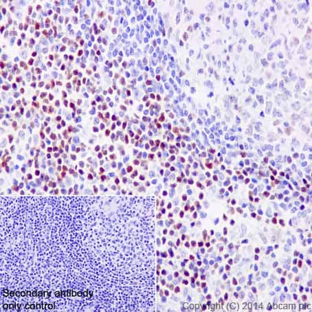 Immunohistochemistry (Formalin/PFA-fixed paraffin-embedded sections) - Anti-LEF1 antibody [EPR2029Y] (ab137872)