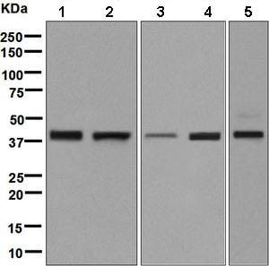 Western blot - Anti-WDR68 antibody [EPR8712] (ab138490)