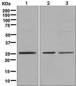 Western blot - Anti-ZNF575 antibody [EPR9027] (ab138499)