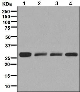 Western blot - Anti-SNAP29 antibody [EPR9199] (ab138500)