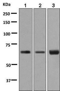Western blot - Anti-BTBD17 antibody [EPR9593(B)] (ab138507)