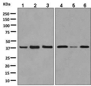 Western blot - Anti-GPCR RDC1/CXCR-7 antibody [EPR9321] (ab138509)