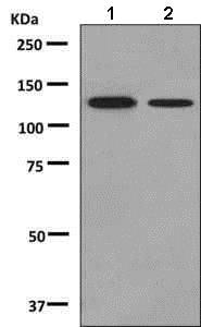 Western blot - Anti-SPINK5/LEKTI antibody [EPR8777] (ab138511)