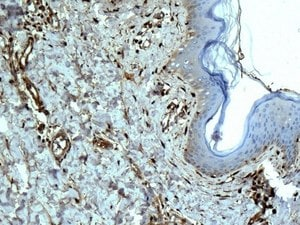 Immunohistochemistry (Formalin/PFA-fixed paraffin-embedded sections) - Anti-Galectin 1 antibody [EPR3206(2)] (ab138513)