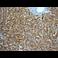 Immunohistochemistry (Formalin/PFA-fixed paraffin-embedded sections) - Anti-SDHA antibody [EPR9042(B)] (ab139181)