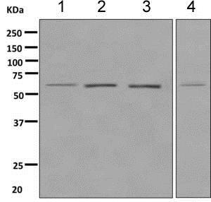 Western blot - Anti-HRPT2/Parafibromin antibody [EPR9218] (ab139189)