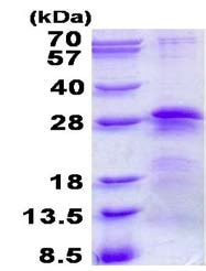 SDS-PAGE - Recombinant Human BTF3 protein (ab139205)