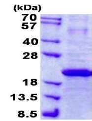 SDS-PAGE - Recombinant Human IFN-alpha-7 protein (denatured) (ab139213)