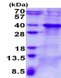 SDS-PAGE - Recombinant Human Bcl 7A protein (ab139229)