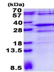 SDS-PAGE - Recombinant Human RSG1 protein (ab139230)
