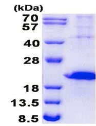 SDS-PAGE - Recombinant Human TIM 3 protein (denatured) (ab139246)