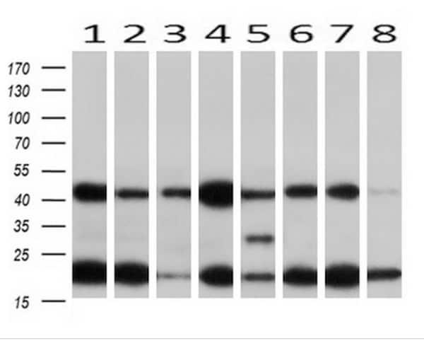 Western blot - Anti-MEK1 antibody [OTI4E1] (ab139343)