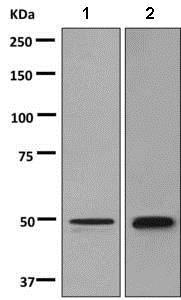 Western blot - Anti-Semenogelin I antibody [EPR3675(2)] (ab139405)