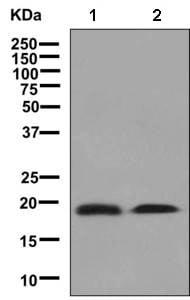 Western blot - Anti-MYL5 antibody [EPR8441] (ab139407)